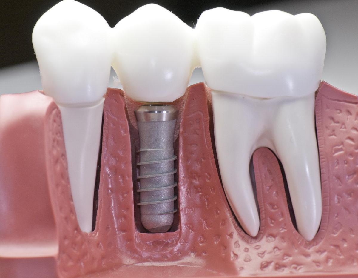 clinica-dental