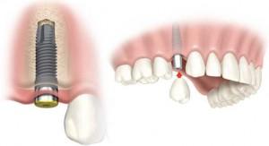 implantes-dentales 2