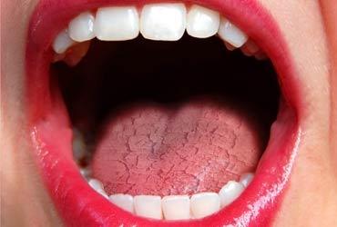 Síndrome de la boca seca